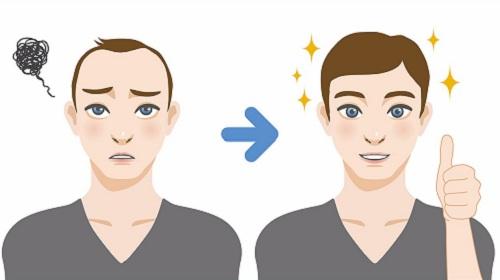 مزایای جراحی کاشت موی طبیعی