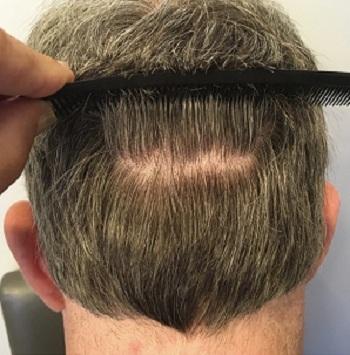 کاشت مو برای چه افرادی مناسب است؟