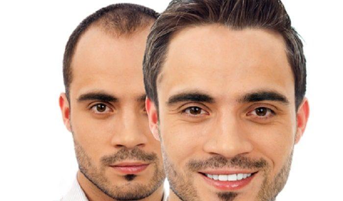 کاشت موی سر به روش FIT