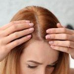 علت ریزش موی سر زنان