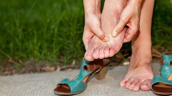 شایعترین دلایل ایجاد میخچه پا