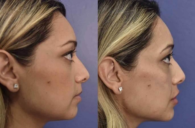 روشهای جراحی زیبایی فک