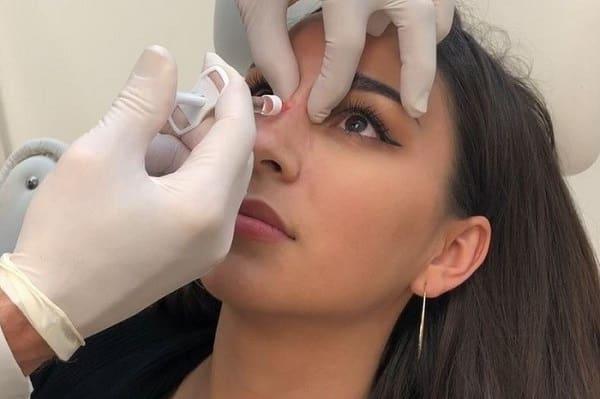 تزریق ژل به بینی چگونه انجام میشود