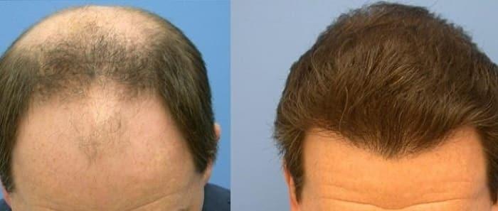 عوارض جانبی تزریق پلاسمای غنی از پلاکت به مو چیست؟